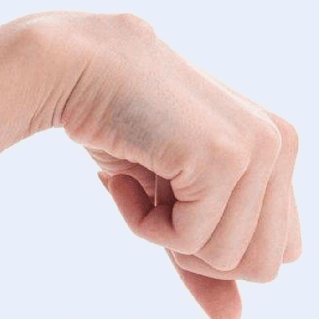 Cisti di Polso (ganglio artrogeno)