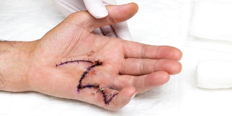 Malattia di Dupuytren - Trattamento chirurgico