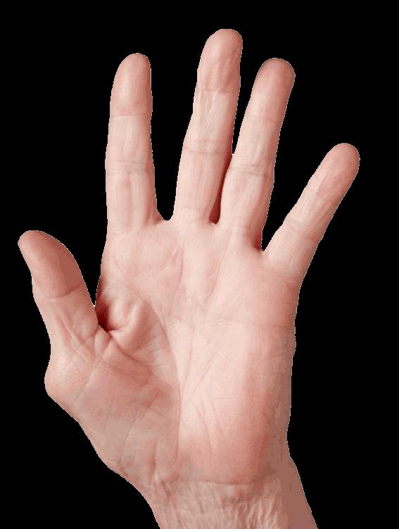Rizoartrosi - Artrosi del pollice